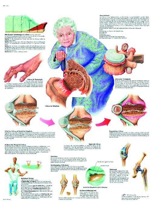Anatomische Lehrtafel, Arthrose