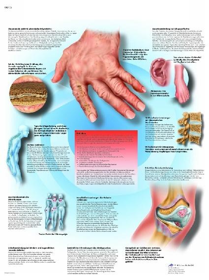 Anatomische Lehrtafel, Rheumatische Erkrankungen
