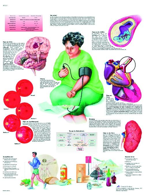Anatomische Lehrtafel, Bluthochdruck